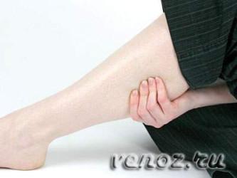 Вены на ногах: лечение варикоза