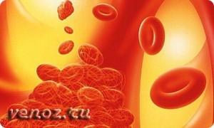 Острый тромбофлебит нижних конечностей: лечение последствий