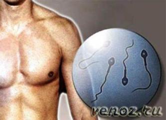 Варикоцеле: лечение болезни