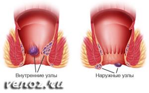 Внутренний геморрой: лечение без операции
