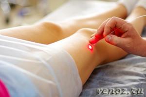 Вены на ногах: лечение лазером