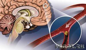 Инсульт: лечение геморрагического инсульта