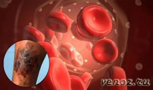 Тромбофлебит: лечение медикаментами