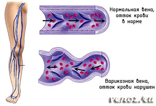 Мазь от варикоза и тяжести вен на ногах
