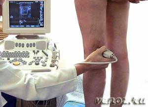 Диагностика и лечение тромбофлебита глубоких вен нижних конечностей