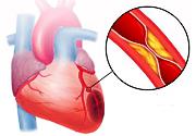 Лечение после инфаркта миокарда