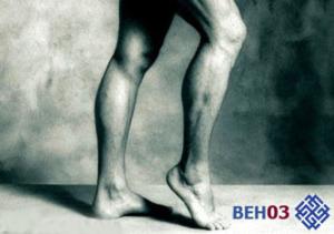 Атеросклероз сосудов нижних конечностей - лечение