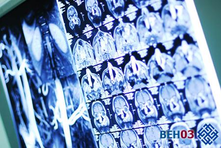 исследования сосудов головного мозга:
