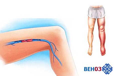 Осложнения после операции по удалению варикозной вены