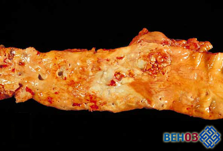 Профилактика атеросклероз артерий конечностей