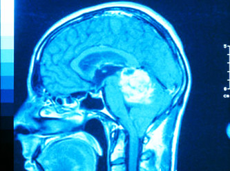 ЭЭГ головного мозга при опухоли мозга