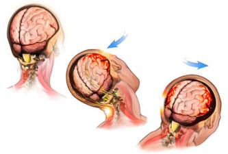 ЭЭГ головного мозга при черепно-мозговых травмах