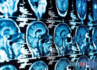 ЭЭГ головного мозга: электроэнефалограмма