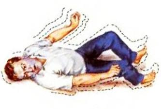 ЭЭГ головного мозга при эпилепсии