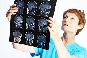 ЭЭГ головного мозга при воспалении мозга