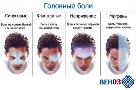 Разновидности головной боли в зависимости от места возникновения.