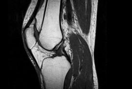МРТ суставов ног