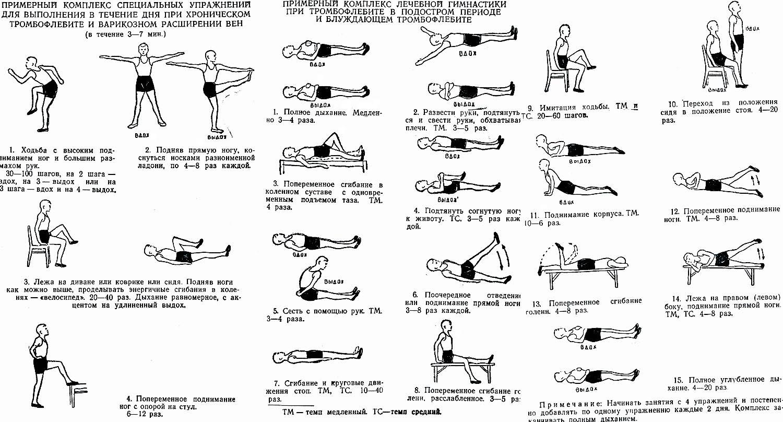 Лечение варикоза гимнастическими упражнениями