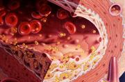 Омега-3 для контроля уровня холестерина