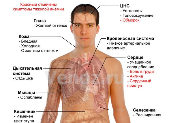 Анемия: симптомы и лечение