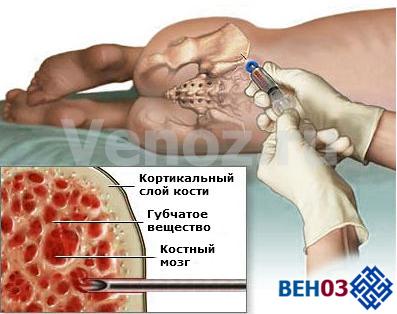 Апластическая анемия: лечение инъекцией препарата метилпреднизолона