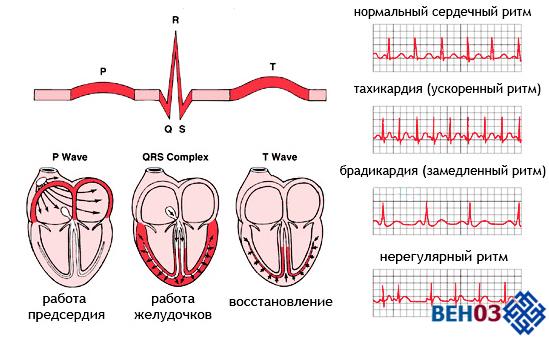 Синусовая аритмия выраженная брагикардией