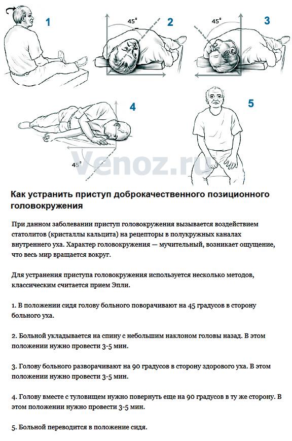 golovokruzheniye32