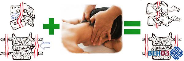 Вертиго причины: головокружение может быть связано с остеохондрозом