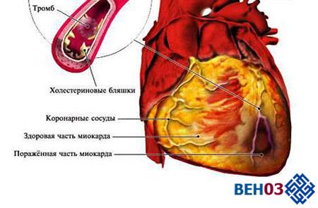 Признаки инфаркта сердца