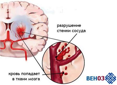 Инсульт: геморрагический инсульт и его особенности