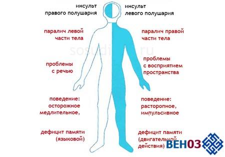 При инсульте геморрагическом левой стороны последствия отличаются от инсульта правой стороны
