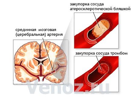 Ишемия головного мозга: что это такое?