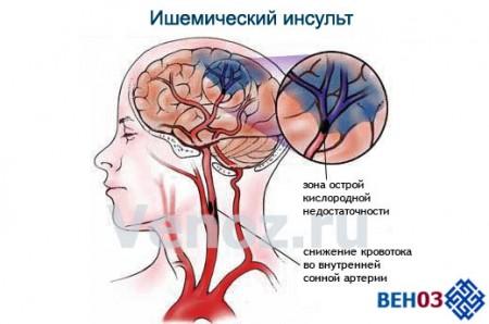 ishemiya-golovnogo-mozga4
