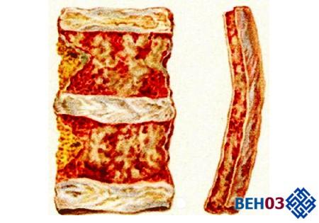 Миеломная болезнь: симптомы миеломы костного мозга