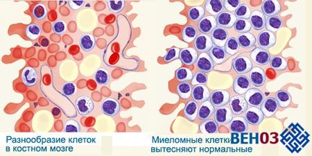 Миеломная болезнь: симптомы и проявление на уровне клеток