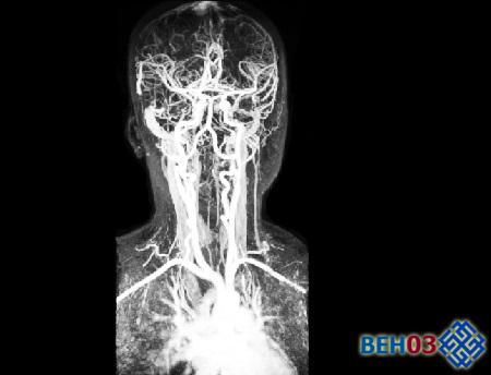 МРА сосудов (артерий) шеи и головного мозга