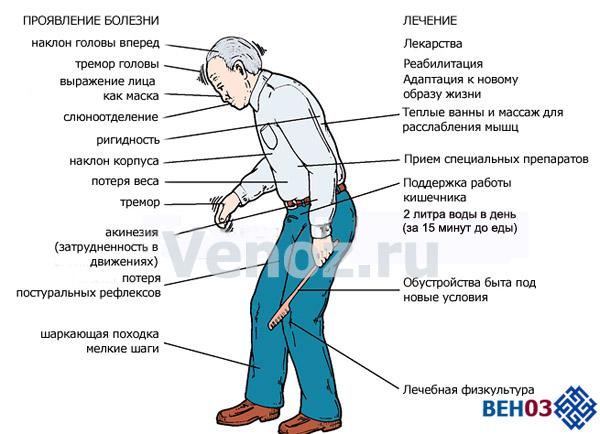 Панкреатит симптомы и лечение малышева