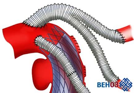 Аортокоронарное шунтирование сердца: проведение операции