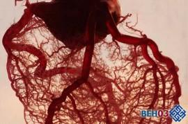 Спазмы сосудов головного мозга