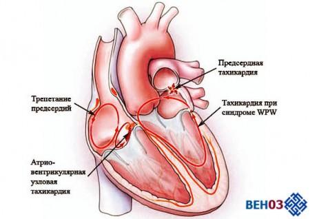 Тахикардия сердца что это такое