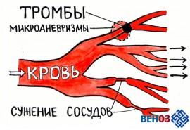 Тромбоз: тромбоцитарно-сосудистый гемостаз
