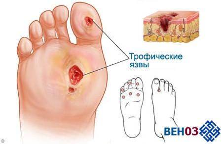 Трофическая язва на ноге: лечение диабетической стопы