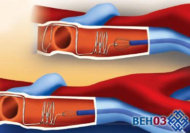 Тромбофлебит нижних конечностей: имплантация кава-фильтра