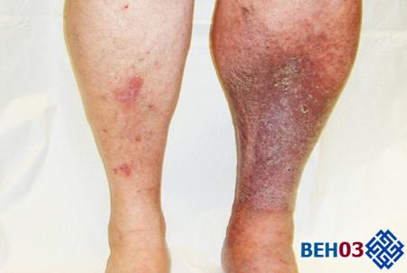 Темные пятна на ногах при варикозе что это