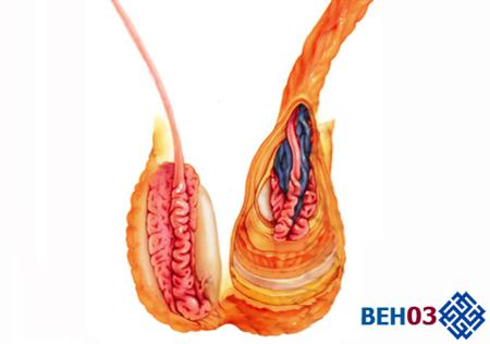 Варикоцеле: симптомы проявления