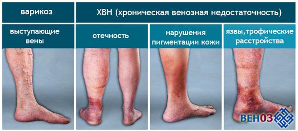 Стадии варикозной болезни нижних конечностей