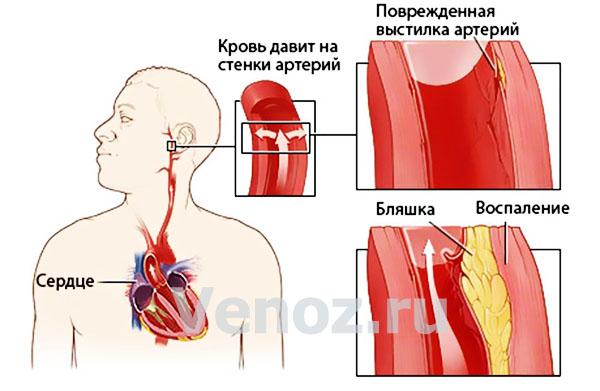 Артериальная гипертензия: механизм и причины появления