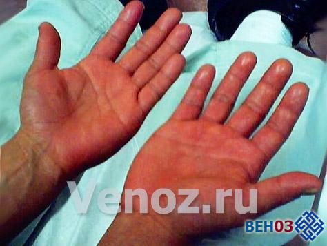 Лейкоз крови: эритремия