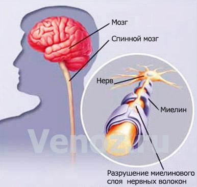 Рассеянный склероз: лечение и механизм развития болезни