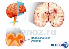 Рассеянный склероз: лечение болезни